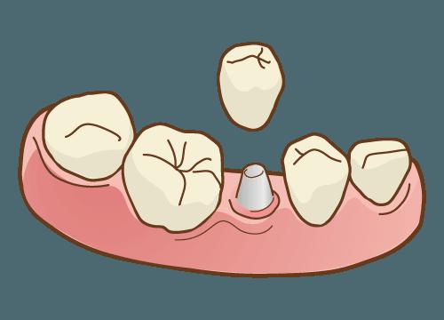 インプラント義歯